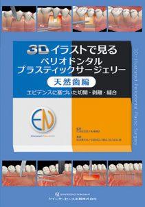 3Dイラストで見るペリオドンタルプラスティックサージェリー 天然歯編の写真
