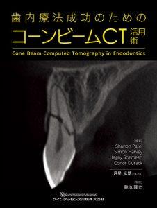 歯内療法成功のためのコーンビームCT活用術の写真