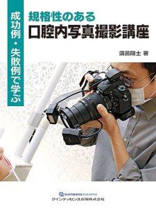 成功例・失敗例で学ぶ 規格性のある口腔内写真撮影講座の写真