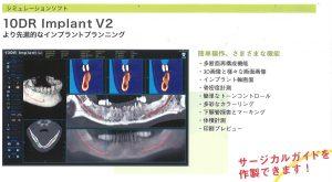 10DR Implant V2の写真