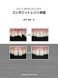 なるべく歯を削らないで治すコンポジットレジン修復 田代浩史 著の写真