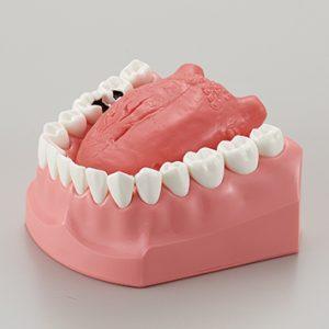 説明用舌癌模型【P21-X.1321】の写真