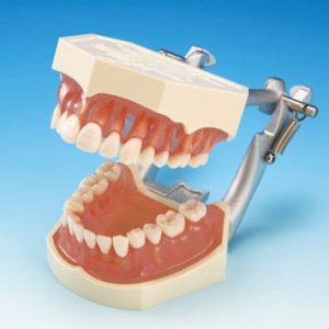 複製模型歯着脱顎模型 PE-ANA009の写真