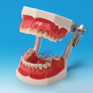 歯周病説明用顎模型 PE-PER003の写真