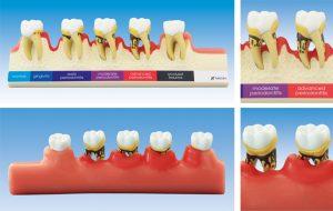 歯周病進行ステップ説明用模型 PE-PER010の写真