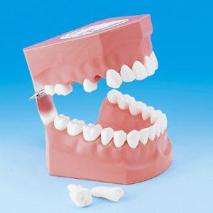 2倍大歯磨き指導用顎模型 PE-STP002の写真