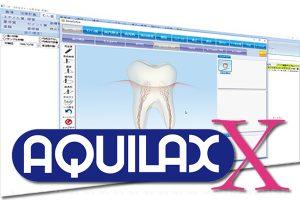 AQUILAX-Xの写真