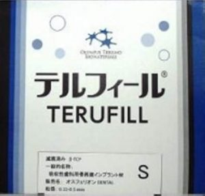 テルフィールの写真