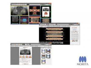 Trinity Core Pro (患者プレゼンテーション用ソフト)の写真