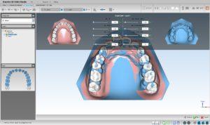 矯正用CADソフト  Ortho Studioの写真