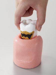 4倍大歯周病説明用模型[PE-PER014]の写真