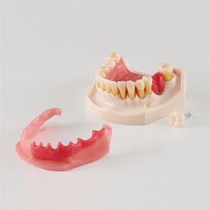 歯周病・インプラント周囲炎説明用模型[PE-PER015]の写真