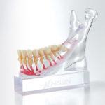 下顎神経説明用模型[PE-ANA012]の写真