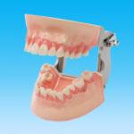 SRP実習用顎模型[P15FE-MINT.1]の写真