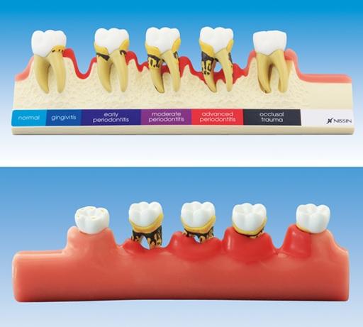 歯周病進行ステップ説明用模型[PE-PER010]の写真